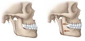 illustration of protruding jaw
