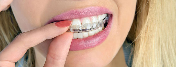 bruxism mouthguard